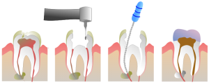 Root_Canal_Illustration