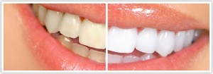 Tooth-Whitening-before-and-after-300x105